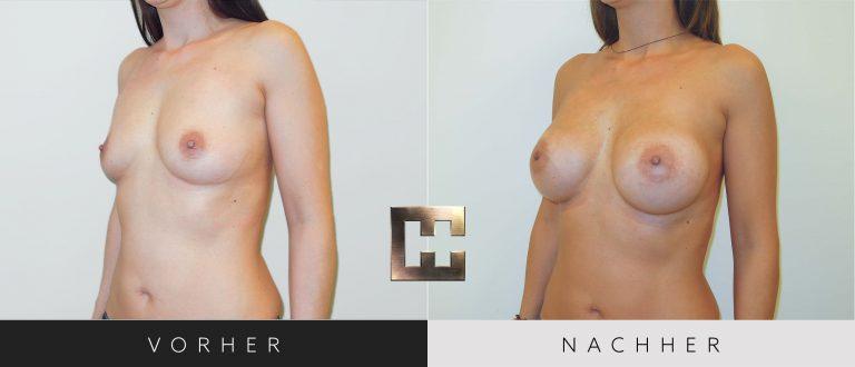 Brustvergrößerung Vorher Nachher 042 Bild #2