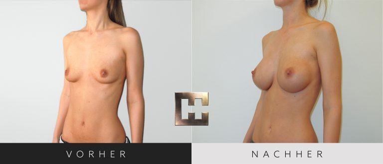 Brustvergrößerung Vorher Nachher 043 Bild #2