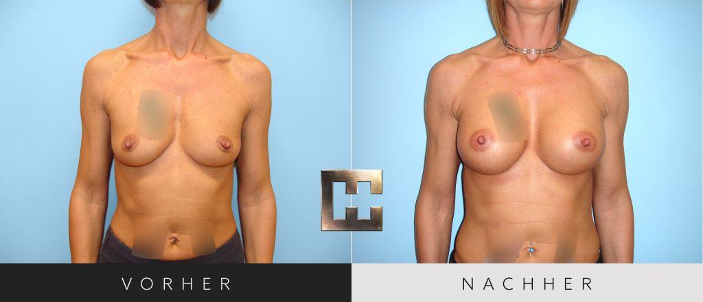 Brustvergrößerung Vorher Nachher Bilder Patient 044