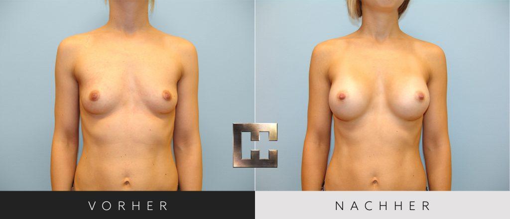 Brustvergrößerung Vorher Nachher Bilder Patient 046
