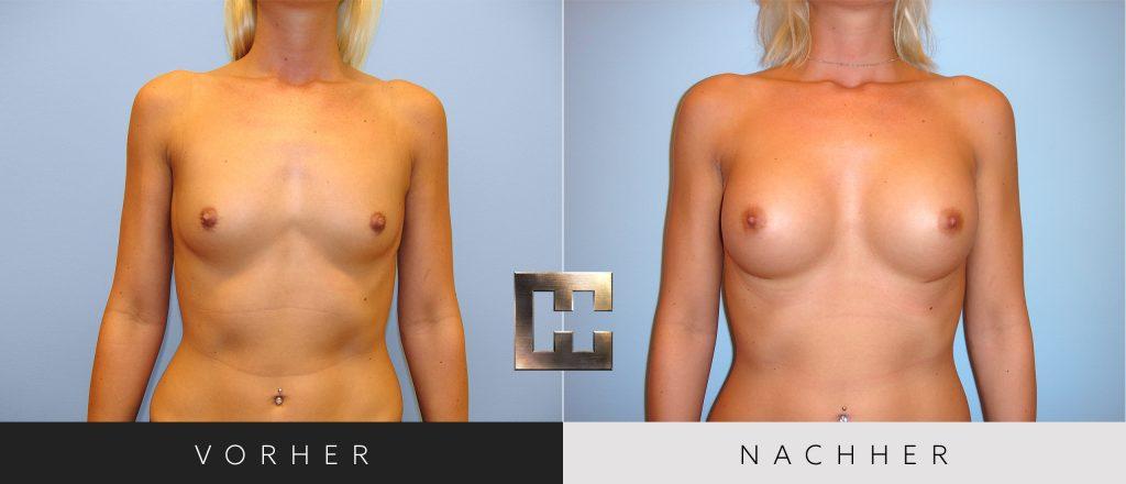 Brustvergrößerung Vorher Nachher Bilder Patient 047
