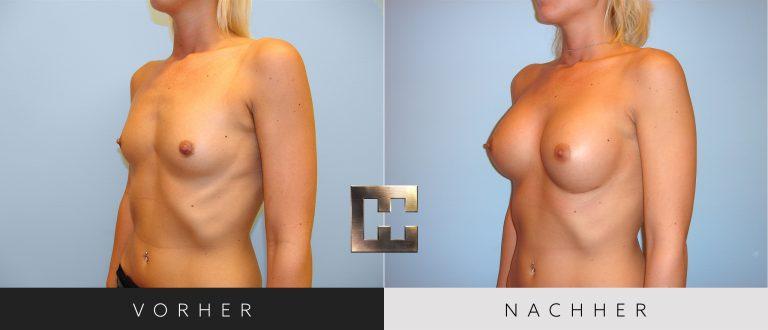 Brustvergrößerung Vorher Nachher 047 Bild #2