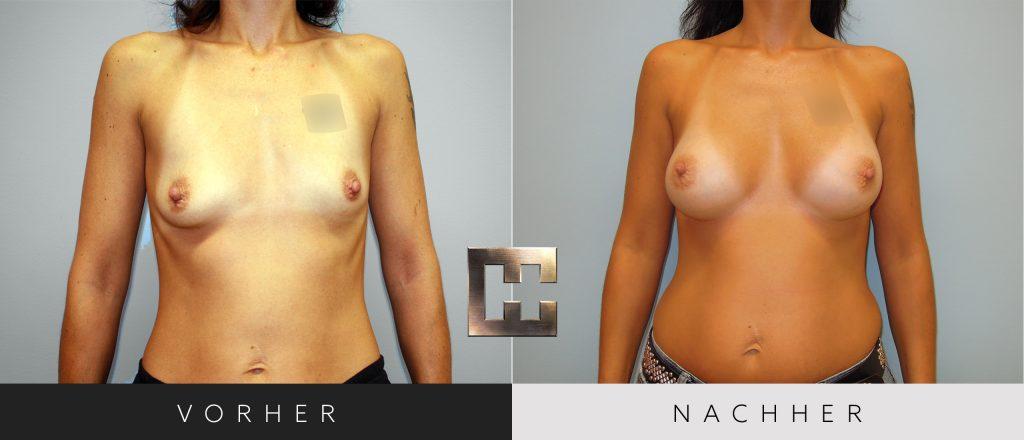 Brustvergrößerung Vorher Nachher Bilder Patient 048
