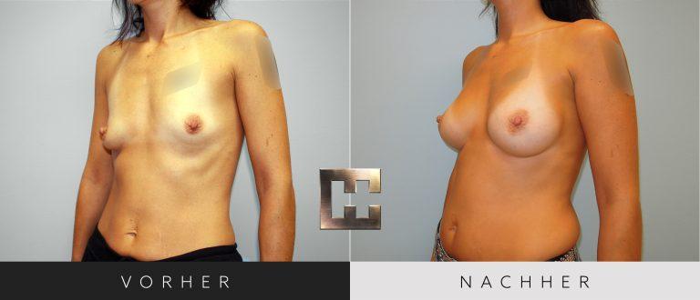Brustvergrößerung Vorher Nachher 048 Bild #2