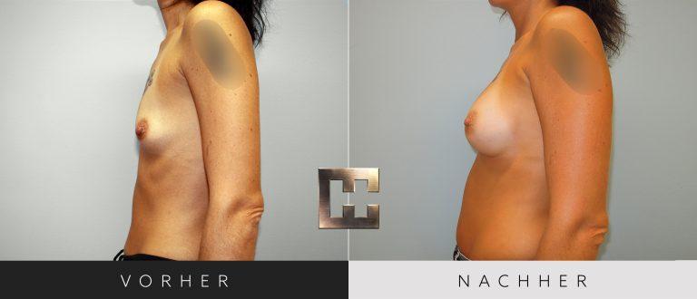 Brustvergrößerung Vorher Nachher 048 Bild #3