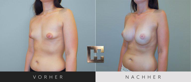Brustvergrößerung Vorher Nachher 050 Bild #2