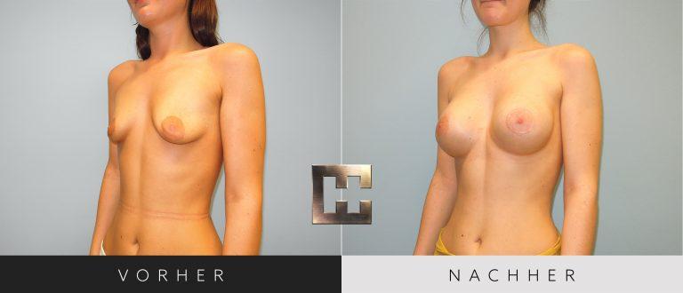 Brustvergrößerung Vorher Nachher 051 Bild #2