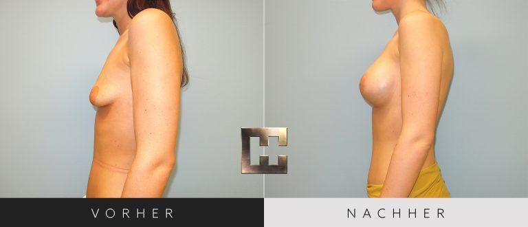 Brustvergrößerung Vorher Nachher 051 Bild #3