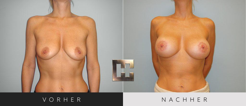 Brustvergrößerung Vorher Nachher Bilder Patient 052