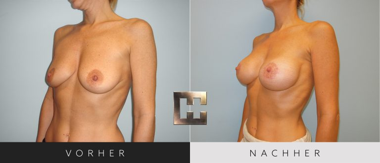 Brustvergrößerung Vorher Nachher 052 Bild #2