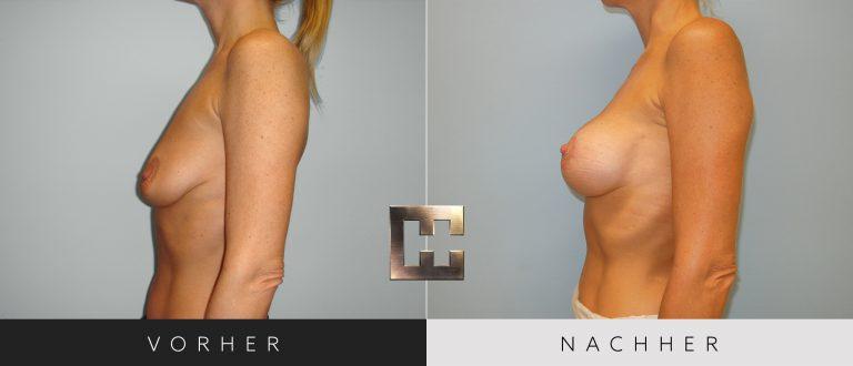 Brustvergrößerung Vorher Nachher 052 Bild #3