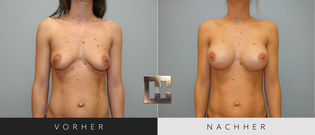 Brustvergrößerung Vorher Nachher Bilder Patient 053