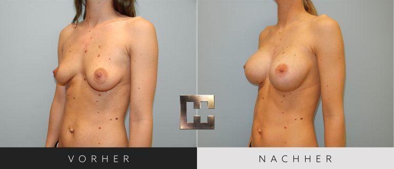 Brustvergrößerung Vorher Nachher 053 Bild #2