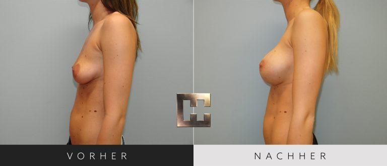 Brustvergrößerung Vorher Nachher 053 Bild #3