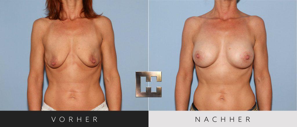 Brustvergrößerung Vorher Nachher Bilder Patient 054