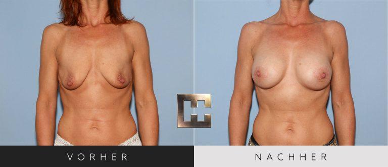 Brustvergrößerung Vorher Nachher 054 Bild #1