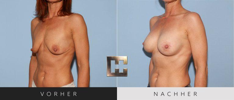 Brustvergrößerung Vorher Nachher 054 Bild #2