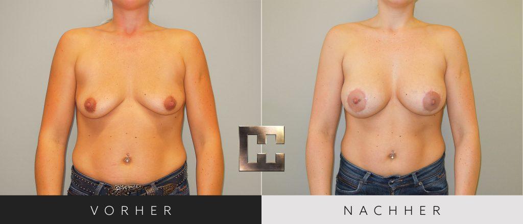 Brustvergrößerung Vorher Nachher Bilder Patient 055