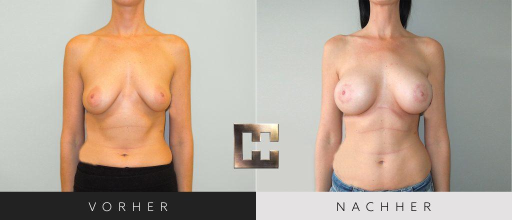 Brustvergrößerung Vorher Nachher Bilder Patient 056