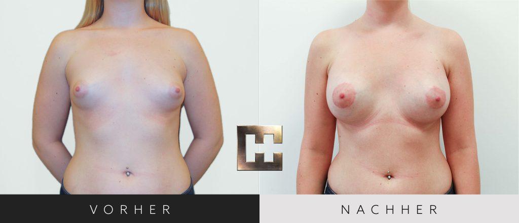 Brustvergrößerung Vorher Nachher Bilder Patient 057