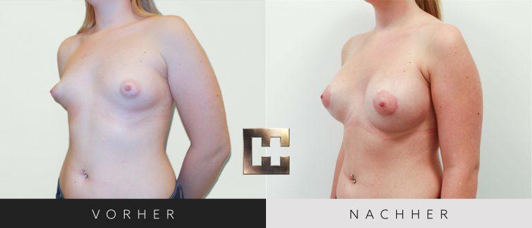 Brustvergrößerung Vorher Nachher 057 Bild #2