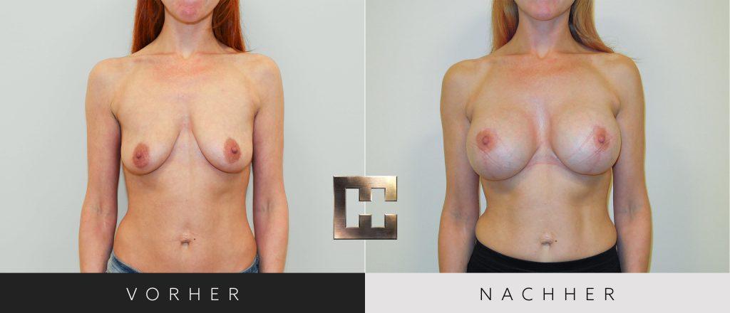 Brustvergrößerung Vorher Nachher Bilder Patient 059
