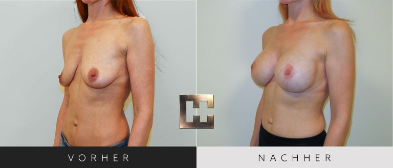 Brustvergrößerung Vorher Nachher 059 Bild #2