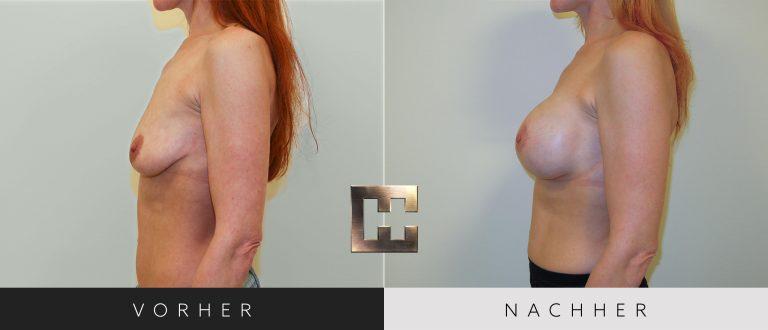 Brustvergrößerung Vorher Nachher 059 Bild #3
