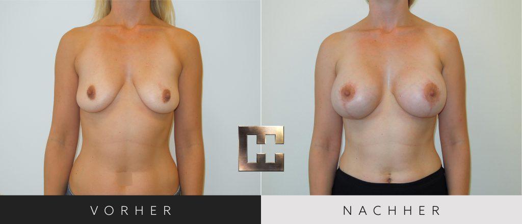 Brustvergrößerung Vorher Nachher Bilder Patient 060