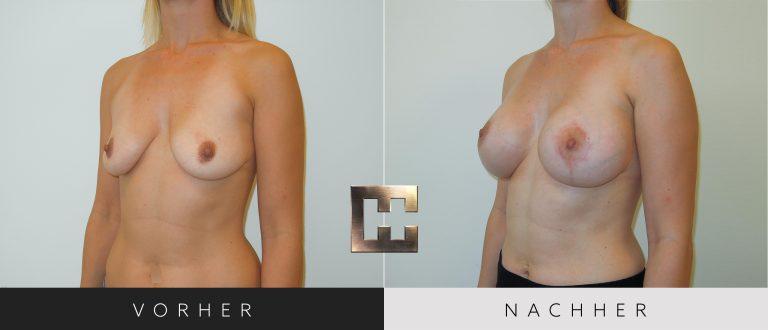Brustvergrößerung Vorher Nachher 060 Bild #2