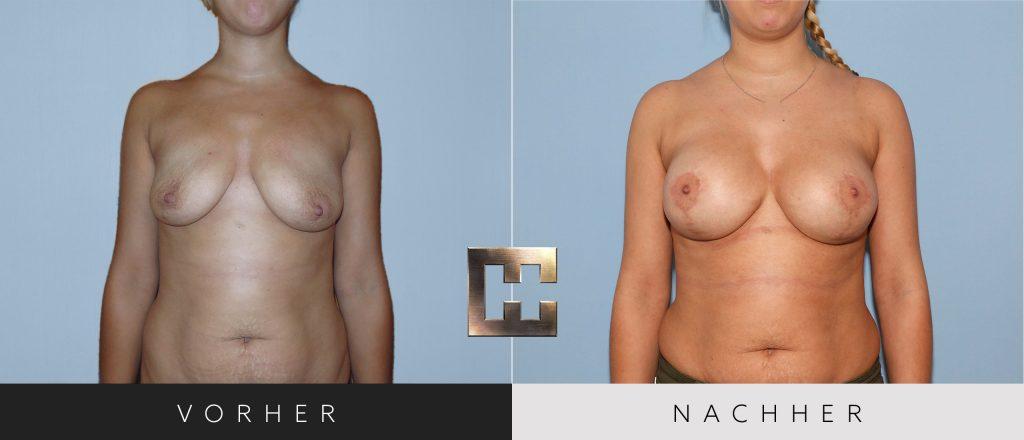 Brustvergrößerung Vorher Nachher Bilder Patient 062