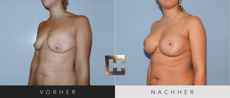 Brustvergrößerung Vorher Nachher 062 Bild #2