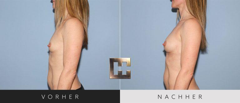 Pjure Breast Vorher Nachher 063 Bild #3