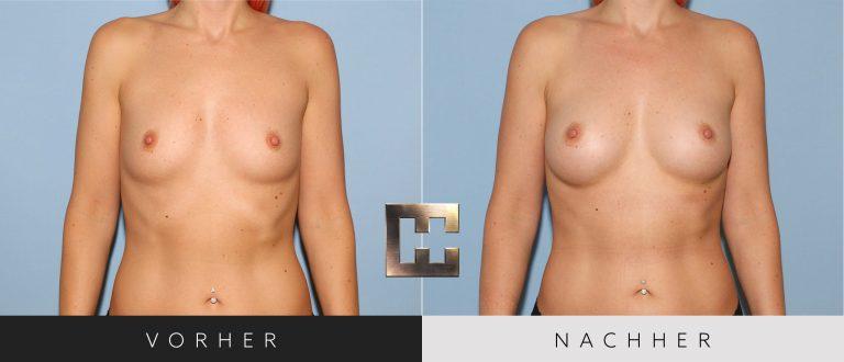 Pjure Breast Vorher Nachher 064 Bild #1
