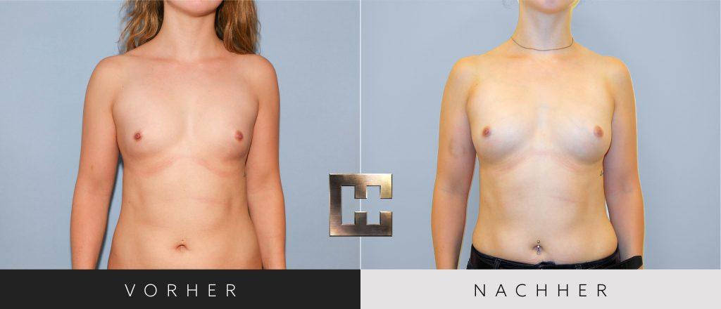Pjure Breast Vorher Nachher Bilder Patient 065