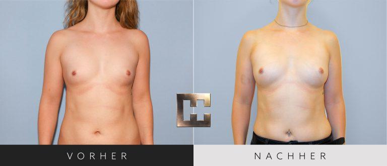 Pjure Breast Vorher Nachher 065 Bild #1