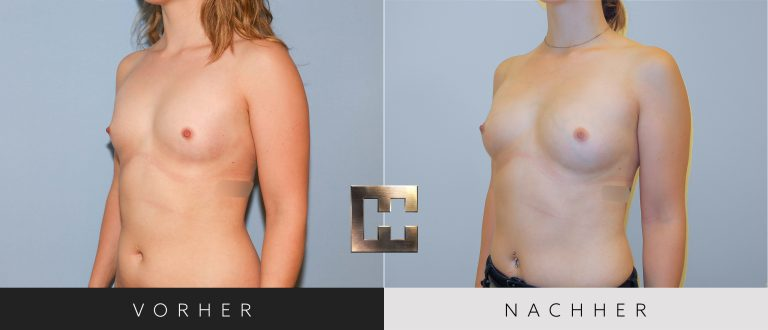 Pjure Breast Vorher Nachher 065 Bild #2