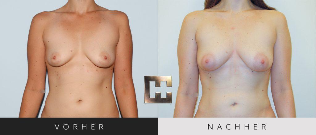 Pjure Breast Vorher Nachher Bilder Patient 066