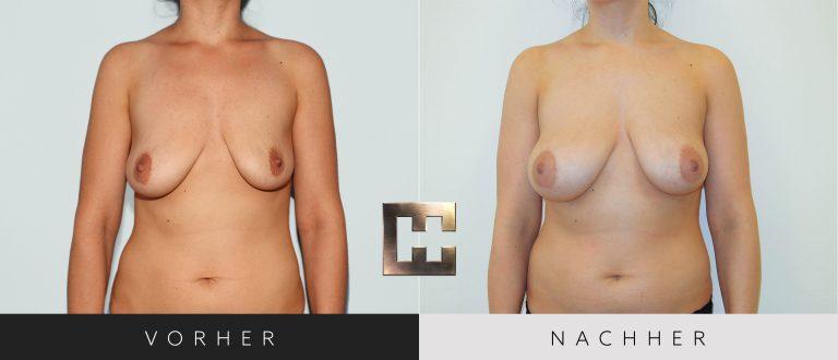 Pjure Breast Vorher Nachher 067 Bild #1