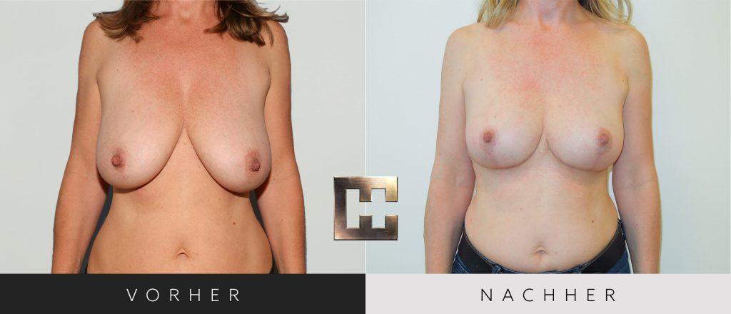 Brustverkleinerung Vorher Nachher Bilder Patient 069