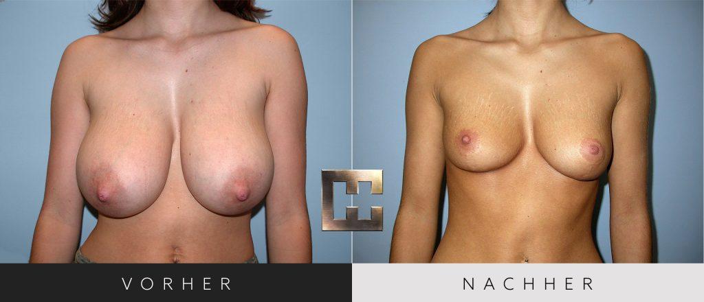Brustverkleinerung Vorher Nachher Bilder Patient 070
