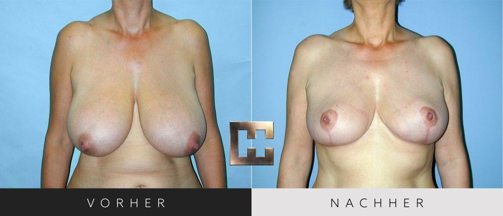 Brustverkleinerung Vorher Nachher Bilder Patient 071