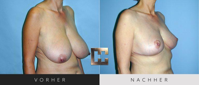 Brustverkleinerung Vorher Nachher 071 Bild #2
