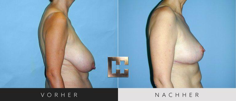 Brustverkleinerung Vorher Nachher 071 Bild #3