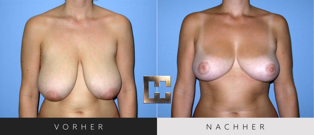 Brustverkleinerung Vorher Nachher Bilder Patient 072