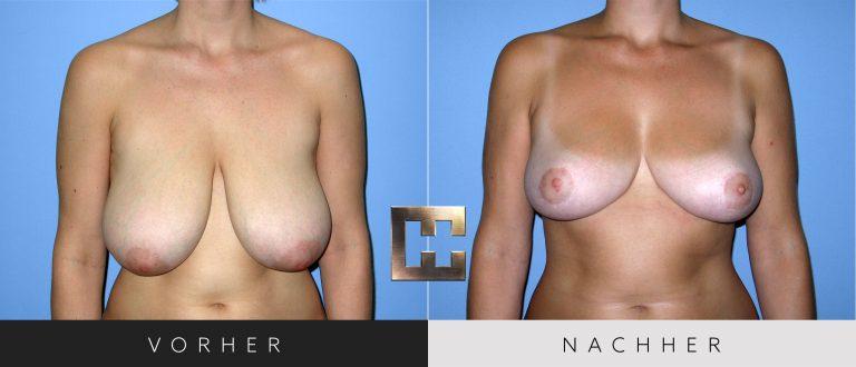 Brustverkleinerung Vorher Nachher 072 Bild #1