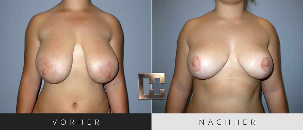 Brustverkleinerung Vorher Nachher Bilder Patient 073