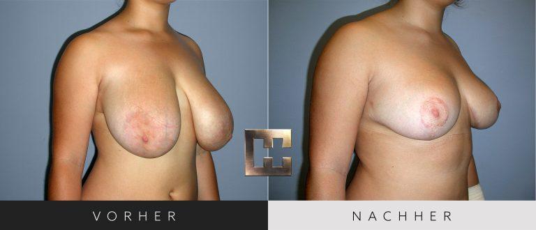 Brustverkleinerung Vorher Nachher 073 Bild #2