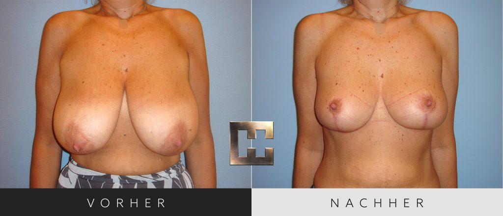 Brustverkleinerung Vorher Nachher Bilder Patient 074