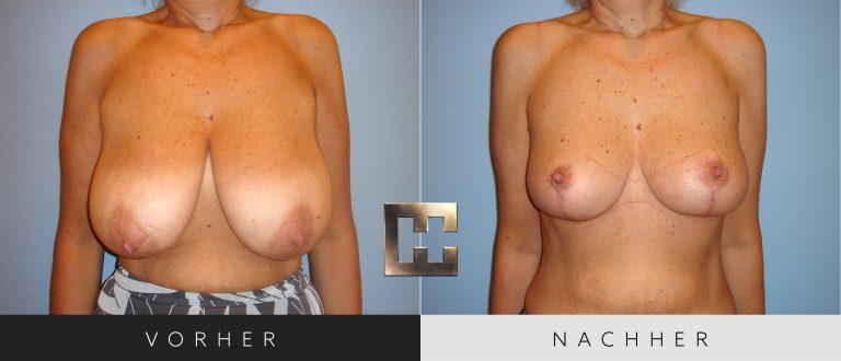 Brustverkleinerung Vorher Nachher 074 Bild #1
